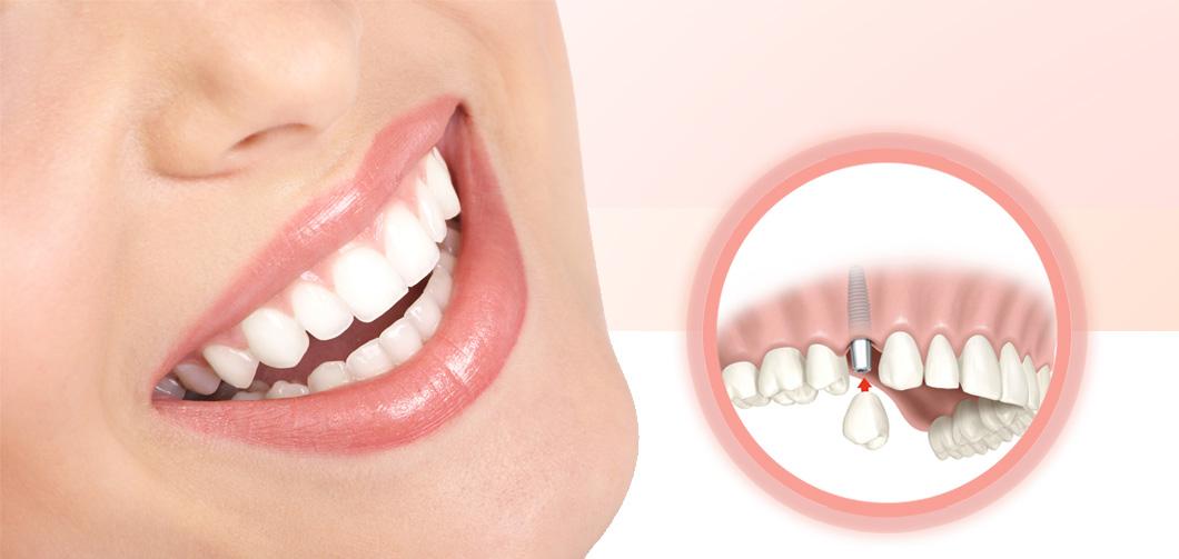 implantodontia 2